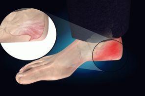 Причины боли в пятке при ходьбе