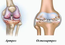 Артроз и остеоартроз