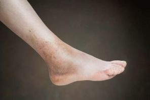 Почему опухает нога в голеностопе