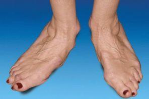 Ревматоидный артрит – иммунное заболевание