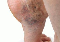 Почему опухают ноги в районе щиколотки
