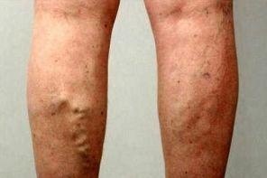 Последствия варикоза на ногах