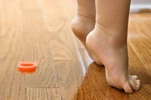 Детское плоскостопие и его профилактика