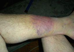 Как лечить гематому на ноге