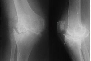 Деформация суставов при артрите