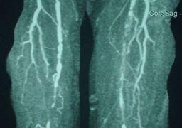 Стенозирующий атеросклероз артерий нижних конечностей