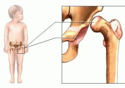 Ацетабулярная дисплазия тазобедренных суставов