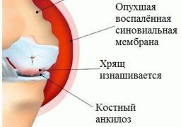 Можно ли вылечить ревматоидный артрит навсегда