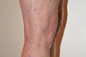 Лечение вен на ногах