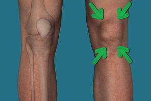 Почему болит колено под чашечкой
