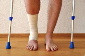 Лечение артроза голеностопного сустава в домашних условиях