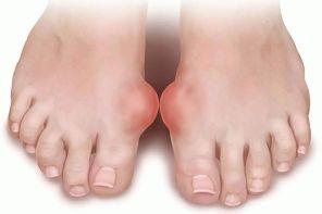 Лечение подагрического артрита народными средствами