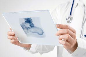 Рентгенотерапия при пяточной шпоре