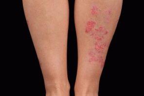 Симптомы, причины и лечение псориатического артрита