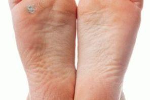 Что делать, если загноилась мозоль на ноге