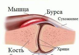 Причины возникновения бурсита