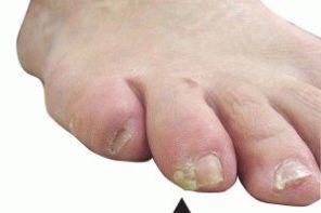 Почему болит безымянный палец на ноге