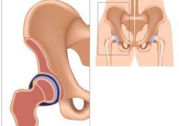 Врождённая дисплазия тазобедренных суставов