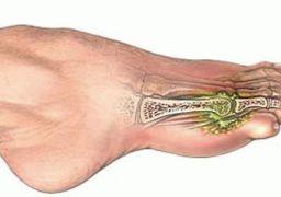 Перелом пальца на ноге