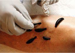 Лечение пиявками варикозного расширения вен