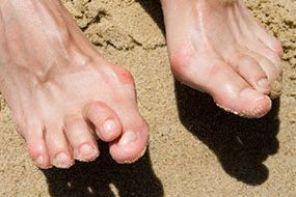 Почему болят суставы пальцев ног