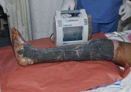 Гнойная рана на ноге