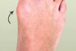 Твёрдая мозоль на пальце ноги