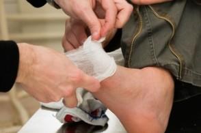 Профилактика трофических язв на ногах