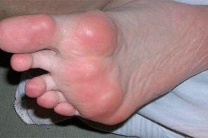 Воспалительный артрит