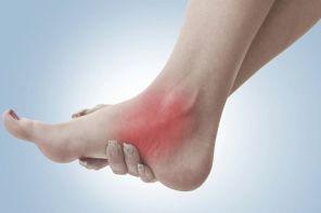 Почему опухла нога после ушиба лодыжки