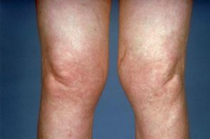 Ревматоидный артроз