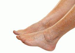 Отёчность ног у пожилых людей