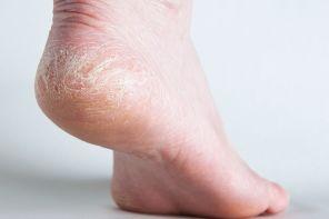 Лечение трещин на пятках глицерином с уксусом