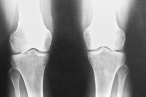 Двусторонний артроз коленного сустава 1 степени
