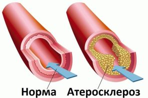 Атеросклероз нижних конечностей в старческом возрасте