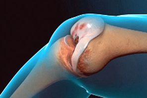 Гонартроз коленного сустава 1 степени