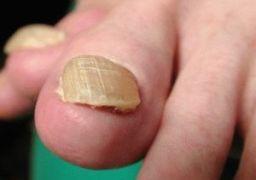 Ногти на ногах желтеют и утолщаются