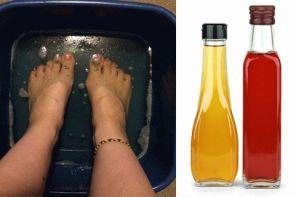 Как лечить грибок ногтей на ногах уксусом