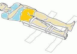 Что и как нужно фиксировать при переломе бедра