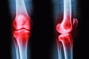Недифференцированный артрит