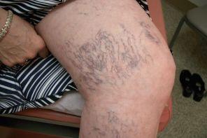 Классификация и различия методов лечения варикоза ног