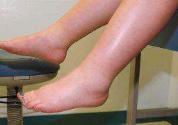 Почему отекают ноги утром