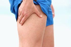 Онемение ноги от бедра до колена