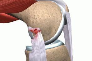 Растяжение связок колена