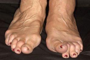 Ревматоидный артрит при диабете