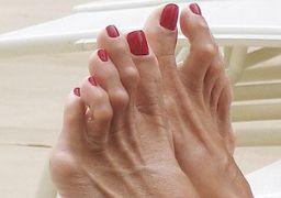 Молоткообразные пальцы ног