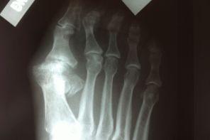 Артроз плюснефалангового сустава первого пальца стопы