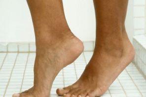 Отёк и посинение ног
