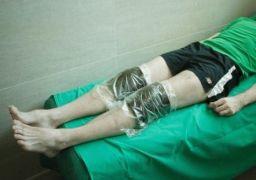 Народные средства лечения артрита на пальцах ног