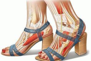 Болит нога на сгибе стопы